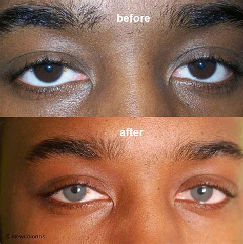 Coloboma versus change the color of your eyes