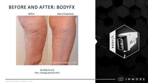 InMode - Body FX Before and After Pics - New Westminster