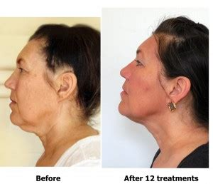 Holistic Rejuvenation – How to look younger naturally